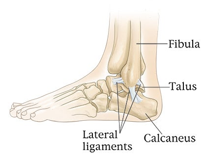 Coping with Ankle Sprains